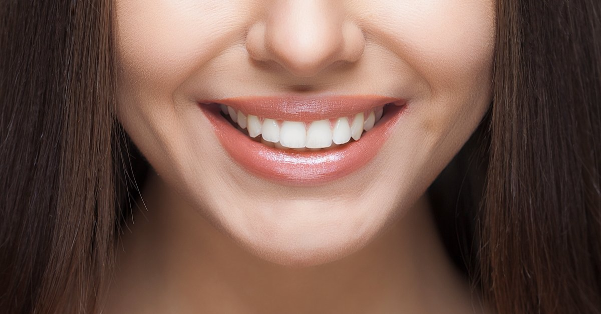 A mosoly, amit megérdemelsz: ultrahangos fogkő-eltávolítás
